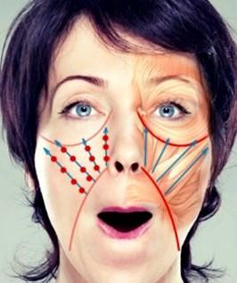 pierdere în greutate folduri nasolabiale